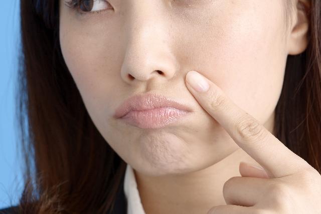 【知識】薬害や、移植手術などの際に免疫力が低下した際のニキビ